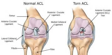 torn acl home treatment acl injuries acl tear surgery at jaipurjoints