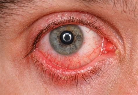 eye infection symptoms 3 effective home remedies for eye infection treatment secretly healthy