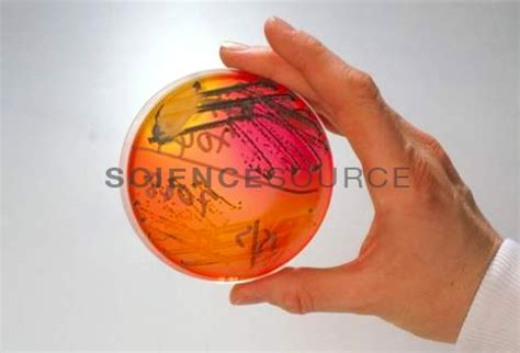 fecal bacteria culture stock photo sa6321 science
