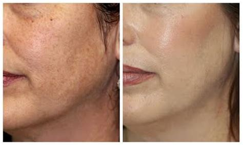 Microdermabrasion Techniques for Acne Scars Removal