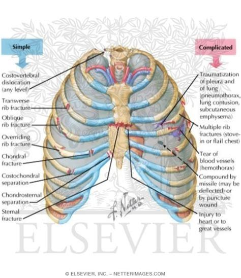 thoracic cage diagram thoracic injuries chest injuries