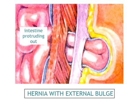 hernia c section scar symptoms ventral hernia clinic surgeon incisional hernia surgery