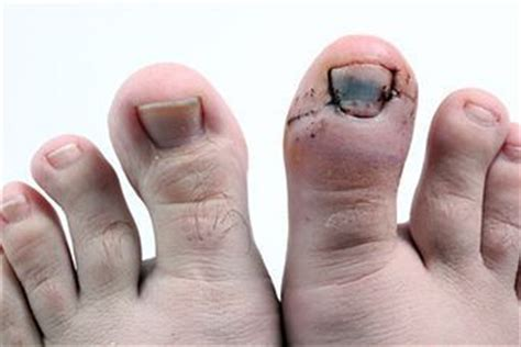 swollen toenail bed almawi ltd the holistic clinic our blog foot health