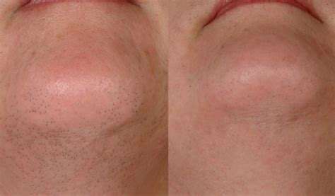 laser hair removal pictures miami center for dermatology miami laser hair removal