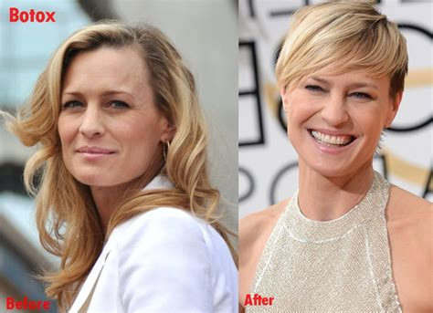 robin wright nose job robin wright penn plastic surgery before and after photos