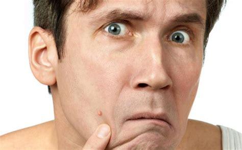 masalah kulit wajah   dialami pria