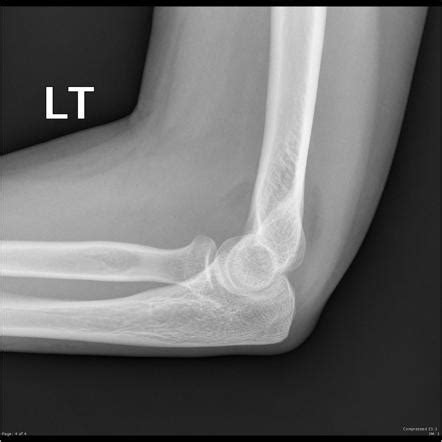 sailboat sign x ray radial neck fracture and sail sign image radiopaedia org