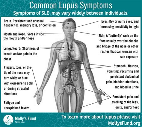 molly s fund lupus symptoms and signs molly s fund