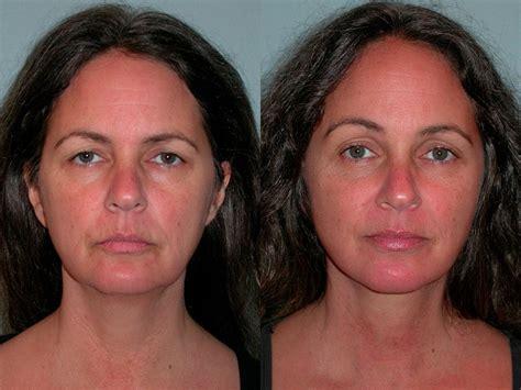 Lower Face And Neck Lift | facelift neck lift plastic surgery santa rosa artemedica