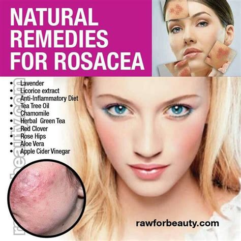 best 25 rosacea remedies ideas on rosacea
