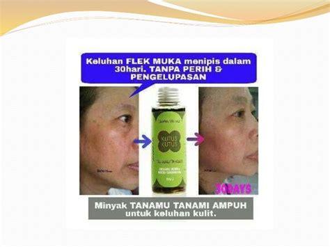 Minyak Tanamu minyak tanamu tanami untuk kesehatan kulit wanita indonesia
