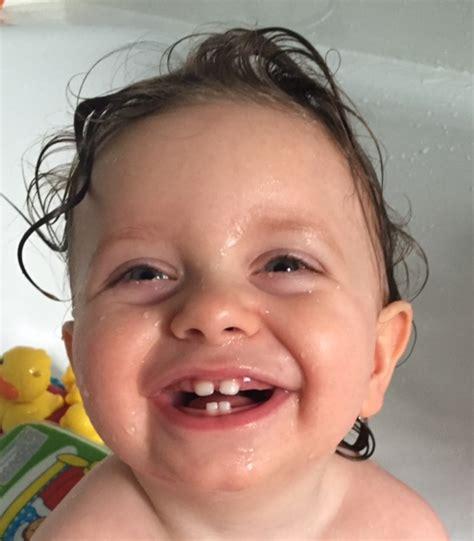 baby teeth stonehouse dentist woodcock dental care news