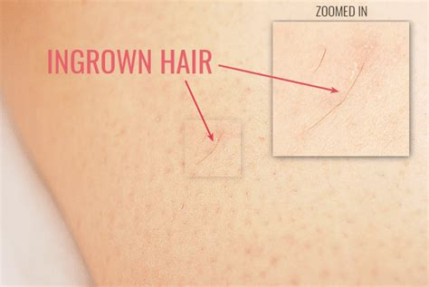 does waxing cause ingrown hairs don t do these 10 things when removing unwanted hair