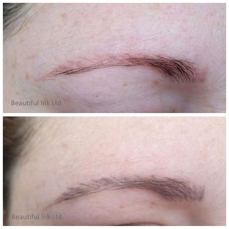 saline eyebrow tattoo removal permanent makeup removal saubhaya makeup