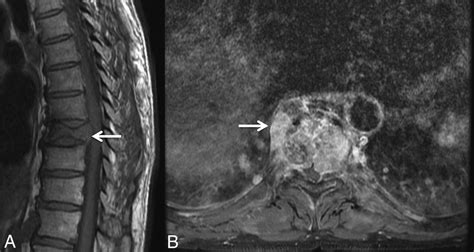 review   imaging features  benign osteoporotic  malignant vertebral compression