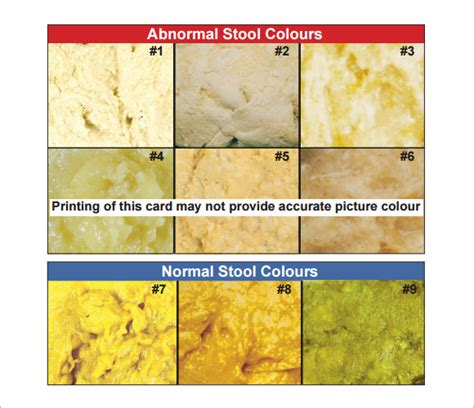 Adults Stool Color Chart by Stool Color Chart 6 Free For Pdf