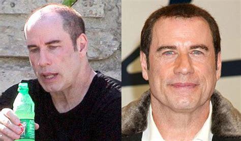 sting hair transplant john travolta wig plastic surgery toupee