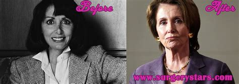 nancy pelosi bra size nancy pelosi plastic surgery before after pics