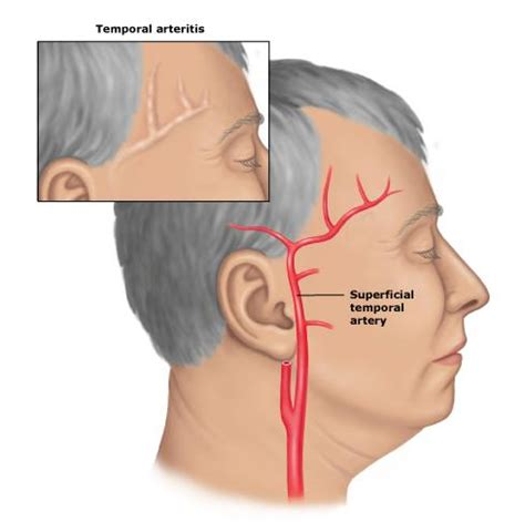 How Does Temporal Arteritis Cause Blindness arteritis temporal causes symptoms treatment arteritis