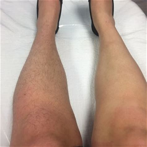 brazilian waxing before and after pictures brazilian wax by andreia east cobb waxing 1205 johnson