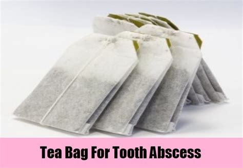 tooth abscess home treatment 7 home remedies for tooth abscess treatments cure for tooth abscess