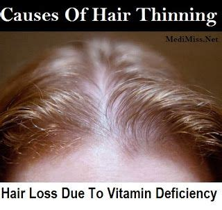 what causes hair growth tablets 1000 ideas about hair loss vitamins on pinterest