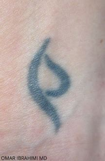 tattoo removal oregon enlighten laser removal portland oregon