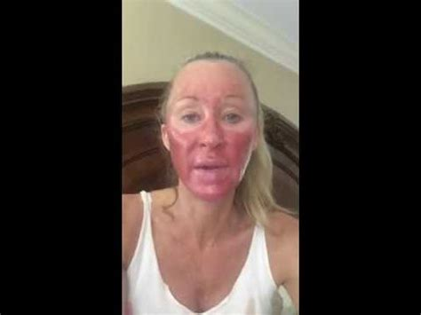 blue light treatment for face photodynamic therapy healing morning day 4 youtube