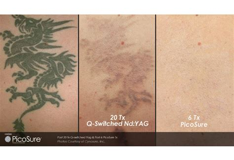 tattoo removal south florida as florida sees a rise in regret dr william h