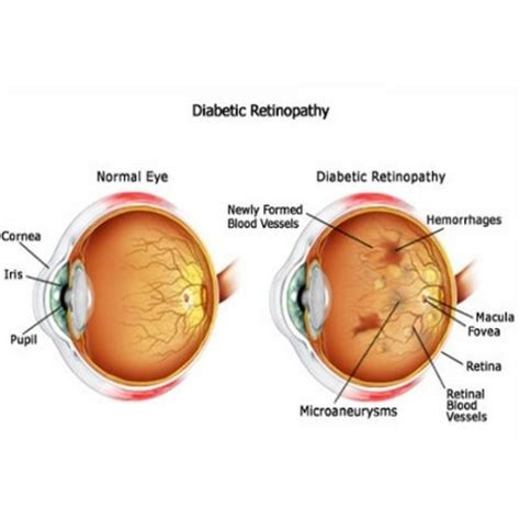 Blindness From Diabetes how to identify symptoms of diabetic blindness fitness