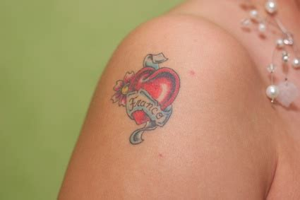 tattoo removal price guide what does removal cost find out at rightclinic