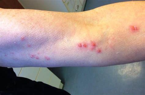 herpes zoster interno senza eruzione cutanea eruzione cutanea herpes zoster braccio sinistro doccheck