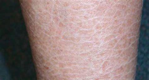 ichthyosis vulgaris  symptoms  diagnosis
