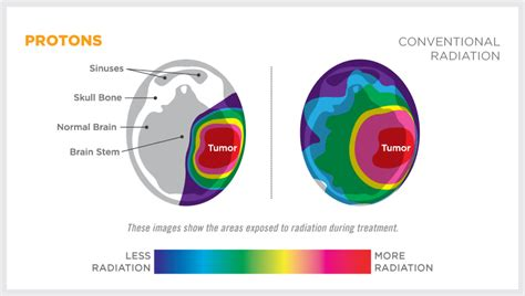 Proton Therapy For Cancer Locations by Proton Therapy For Brain Cancer Provision Proton Therapy