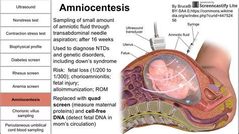 amniocentesis test prenatal screening fetal testing and other tests during