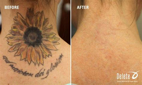 what to expect with tattoo removal delete tattoo removal