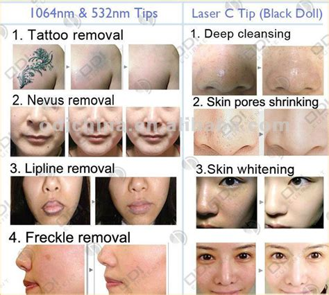 black doll laser before and after top selling portable q switch nd yag laser removal