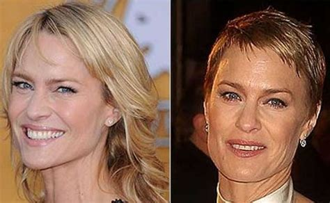 robin wright penn neck surgery robin wright before and after plastic surgery 4