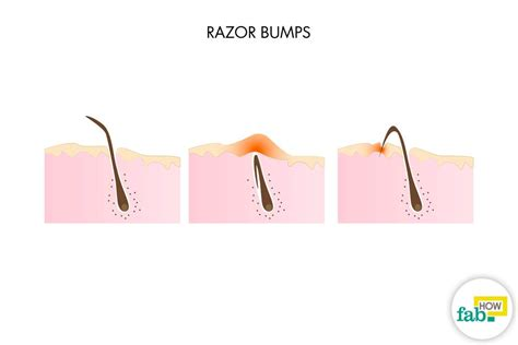 how do you heal ingrown hairs on your chin how to get rid of razor bumps fast with home ingredients