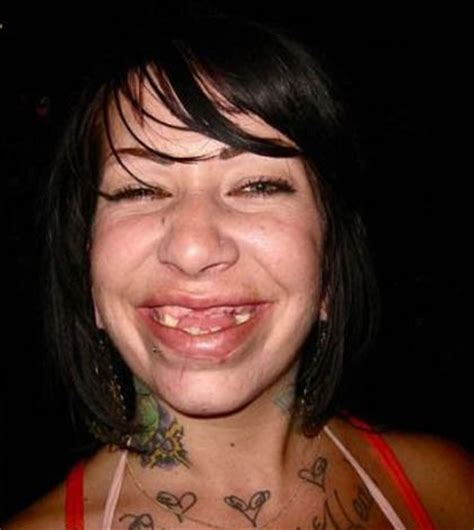 ugly woman image gallery hillbilly missing teeth