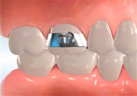 stanley orthodontics describes orthodontic appliances