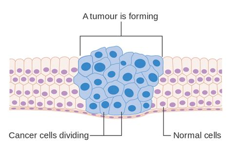 diagram of cancer file diagram showing how cancer cells keep on reproducing