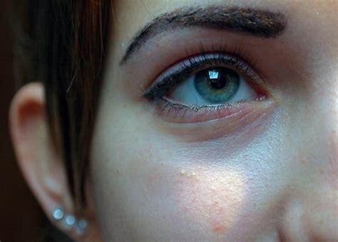 occhiaie alimentazione occhiaie rimedi naturali per prevenire e ridurre gli