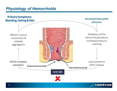 external hemorrhoid pain 5 physiology of hemorrhoids increased intra pelvic