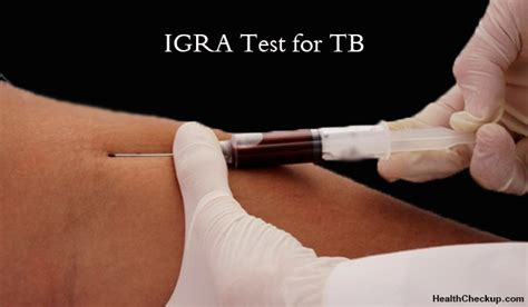 igra test interferon gamma release assays igras test for