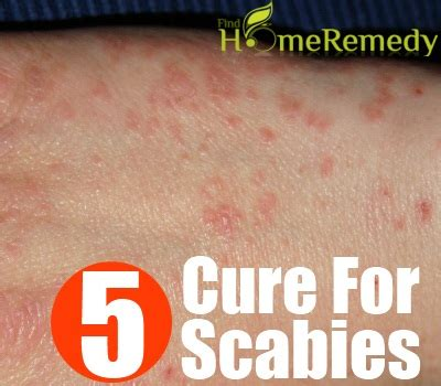 5 cure for scabies how to cure scabies naturally