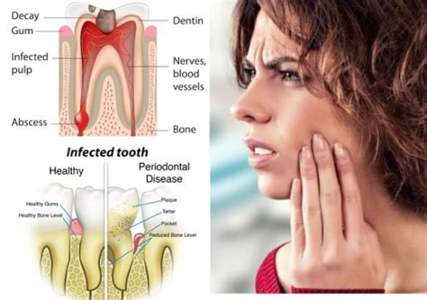 how to get rid of toothache and relieve at home in