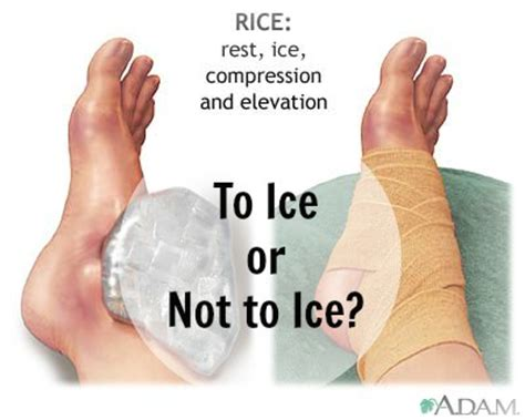 why do we heat treat steel why icing your injury causes more damage than