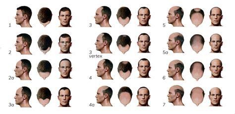 male pattern baldness exles male pattern bladness hair loss in men