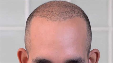 pics of scalp micropigmentation on with hair scalp micropigmentation for michael s hair transplant scar